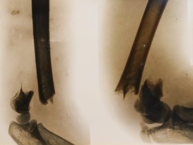 レントゲンで映された骨折の様子